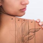 Tattoo removal in Edmonton