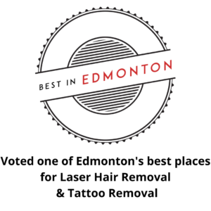 best tattoo removal edmonton